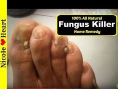 A Fast and Easy Home Remedy To Kill Foot Fungus Naturally