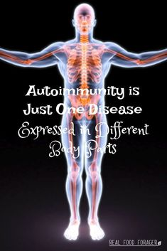 Autoimmunity is a broad condition that has been segmented by medical specialties. Autoimmunity is just one disease expressed in different body parts. Holistic Medicine, Natural Medicine, Medical Specialties, Natural Parenting, Alternative Health, Real Food Recipes, Healthy Recipes, Stress Management, Diet And Nutrition