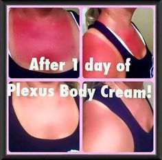 Original or extra crispy? If you find yourself more on the extra crispy side, give Plexus Body Cream a try. It works wonders on sunburns and many other skin conditions. #eczema #strechmarks #scars #acne #psoriasis #sunburn www.michellekass.myplexusproducts.com/body-cream