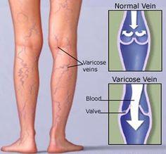 unguent cu pereți varicoși pe picioarele picioarelor tratamentul varicozei varicoză într-o cheie fierbinte
