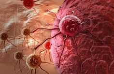 terapia tumore prostata roman catholic
