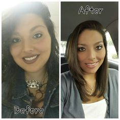 My name is Liz. I have lost 215 lbs with a gastric sleeve i lost on my own Pre-Op, with just changing my habbits. I couldnt be happier with the results and would do it again in a heart beat. My VSG, Gastric sleeve journey. Weight Loss Before, Best Weight Loss, Weight Loss Tips, Losing Weight, Weight Loss Inspiration, Fitness Inspiration, Vertical Sleeve Gastrectomy, Medical Facts, Best Cardio Workout