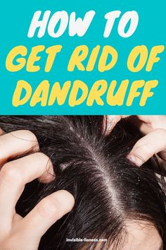 Are you dealing with severe dandruff and looking for remedies? I'll show you what you can do to get rid of dandruff! Long Hair Tips, Grow Long Hair, Easy Hairstyles For Long Hair, Vitamins For Hair Growth, Hair Vitamins, Healthy Hair Tips, Healthy Hair Growth, Diy Hair Care, Hair Care Tips
