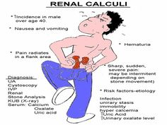 Renal Calculi (Kidney Stones) Concepts for Registered Nurse ( not that I don't know these being on a urology floor , but may want the refresher In the future )