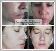 "60 days! She is glowing! When we say ""changing skin, changing lives"", we mean it!! Jessical.myrandf.com"