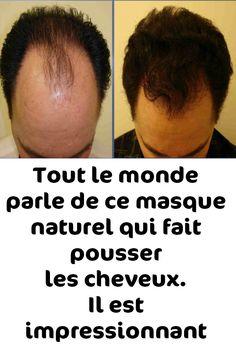 Carne Adobada, Beer For Hair, Hair Care, Face Hair, Hair Loss, Hair Hacks, Hair Beauty, Muscle, How To Apply