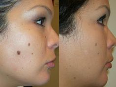 How to Remove Moles? (Home Remedies) How to remove moles. Home remedies for moles. Ways to get rid of moles. Natural treatment for moles removal on arms, face and body. Moles On Face, Skin Moles, Diy Skin Care, Skin Care Tips, Skin Tags Home Remedies, Dental, Skin Tag Removal, Face Mole Removal, Do It Yourself Home