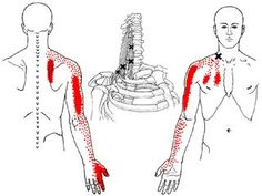Neck muscles cause back, arm, chest & hand pain.