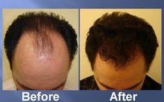 Natural hair transplant for best hair solution its the best treatment which gives you hair  grow.