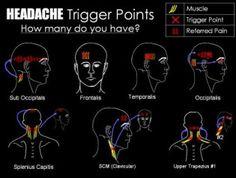 6 Weird Headache Triggers