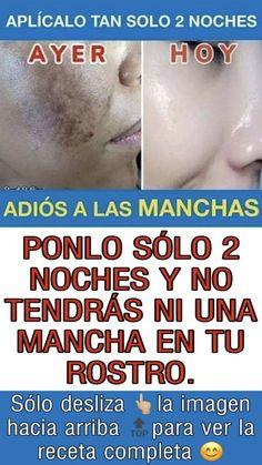 Pin on Manchas Pin on Manchas Beauty Tips For Face, Beauty Makeup Tips, Beauty Secrets, Beauty Care, Beauty Hacks, Hair Beauty, Mascara Hacks, Stealing Beauty, Facial Tips