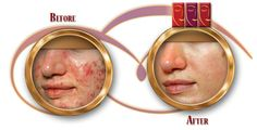 COM: TREATMENTS FOR SKIN ACNE - The original laser treatments often left small scars or irritated and inflamed skin. Today innovative laser acne treatments are completely safe and highly effective. Oily Skin Treatment, Skin Treatments, Adult Acne Treatments, Pimple Scars, Types Of Acne, Lighten Skin, Face Skin Care, Acne Remedies