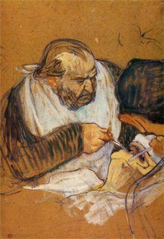 Doctor Pean operates by Toulouse-Lautrec.Блестящий художник Тулуз-Лотрек интересовался медициной, следил за новинками науки. От Габриеля Тапье, студента — медика часто слышал восторженные отзывы о хирурге Пеане.Зажимами Пеана (1862) до сих пор пользуются в хирургии. Он первым 9 апреля 1879 в присутствии врачей выполнил резекцию желудка, создал новый эффективный способ удаления яичников