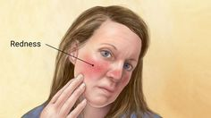 For those who suffer from the skin condition known as rosacea, the redness and pus-filled bumps resembling acne that accompany the disorder can bring enough heartache, but rosacea can also itch and cause throbbing pain, making it particularly debilitating. Commonly triggered by a host of different things including heat, cold, certain foods and beverages, stress, lack of sleep, physical exertion, sun exposure and harsh skin care products, rosacea is complex and problematic for the millions of…