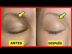 Saggy and droopy eyelids can be really annoying and makeup often looks unattractive on loose skin. Droopy eyelids may even make a person look much older. Facial Skin Care, Natural Skin Care, Skin Care Regimen, Skin Care Tips, Face Care, Body Care, Beauty Secrets, Beauty Hacks, Droopy Eyelids