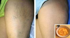 Natural Remedies For Varicose Veins Most Effective Natural Treatment For Varicose Veins. - Here is the most effective all natural treatment for varicose veins. Foot Remedies, Health Remedies, Natural Remedies, Varicose Vein Remedy, Varicose Veins Treatment, Health And Beauty Tips, Health Tips, Health Care, Aloe Vera