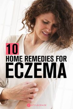 Read this article here and develop a better understanding of treating eczema and learn to control the triggers. Check out these 10 home remedies for eczema. Home Remedies For Eczema, Home Remedies Beauty, Natural Home Remedies, Cellulite, Severe Eczema, Eczema Relief, How To Treat Eczema, How To Get Rid Of Acne, Peda