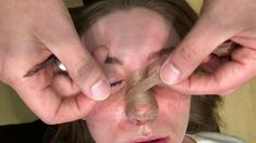 How to tape nose post Rhinoplasty