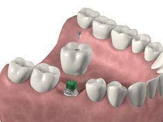 Vista de implante en 3D. Partes de un implante.
