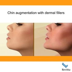 contour can be improved with dermal fillers chin augmentation. Safe and e Facial contour can be improved with dermal fillers chin augmentation. Safe and e.Facial contour can be improved with dermal fillers chin augmentation. Safe and e. Facial Implant, Facial Procedure, Chin Implant, Cheek Fillers, Botox Fillers, Dermal Fillers, Chin Filler, Hyaluron Filler, Cosmetic Fillers
