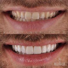 Mais um caso finalizado com muita naturalidade. Em concordância com o paciente optamos por dentes mais retangulares e mais dominantesque fortalece mais a persuasão e convencimento melhorando os relacionamentos pessoais e profissionais... #lentedecontatodental #dental #estheticdental #dental #dentistry #cosmeticdentistry #odontologia #odontologiaestetica #clareamento #deuséfiel by silvinhalemos Our Cosmetic Dentistry Page: http://www.myimagedental.com/services/cosmetic-dentistry/ Google My…