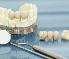 Aberdeen Dental is pleased to offer tooth replacement that functions and looks like healthy natural teeth. http://www.vernondentist.com/blog/permanent-tooth-bridge-bc/  #dentalcare #toothbridge
