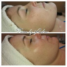 Before/After Advanced Dermaplaning! Faces by Robin skin care.