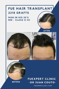 Before After 2218 FUE Grafts - FUE Hair Transplant - Dr Couto - FUExpert Clinic - Madrid, Spain. Hair loss solution for an alopecia Norwood II-III. Hairline & sides restoration .