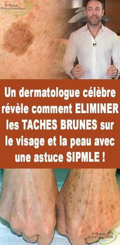 Un dermatologue célèbre révèle comment ELIMINER les TACHES BRUNES sur le visage et la peau avec une astuce SIPMLE !