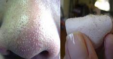 """I punti neri, chiamati anche """"comedoni aperti"""", sono piccole macchie scure sulla pelle. Un """"comedone [Leggi Tutto...]"""