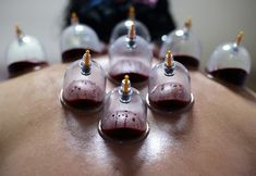 does cupping therapy have side effects? If it does, what are cupping side effects? Are there any dangers of cupping? As with any kinds of treatment, there are side effects of cupping. There is no therapy that has no side effect, in this article, we will tell you about the side effects of cupping and how to avoid it