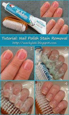 How to remove nail polish stains from your nails: just pick a whitening toothpaste, let it on your nails for about 2-3 minutes and brush gently. Miracle!