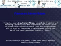 Excellent explanation of the Stages of Pulmonary Fibrosis to Share with loved ones.