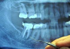 97% de los enfermos oncológicos terminales Anteriormente hicieron este procedimiento dental !!!