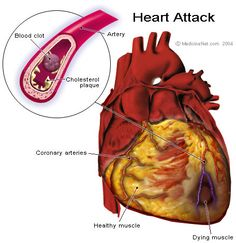 Lifestyle Changes That Can Help You Prevent a Heart Attack - https://topnaturalremedies.net/natural-treatment/lifestyle-changes-that-can-help-you-prevent-a-heart-attack/