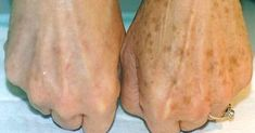 Åldersfläckar , eller leverfläckar , är platta små, bruna eller svarta fläckar som du kan få på händer, axlar, ansikte och andra delar av huden som är mest utsatta för solen. Även om åldersfläckar många gånger kan vara ofarliga, tycker många personer som har åldersfläckar att de är fula. Men du kan faktiskt ta bort dem hemma utan …