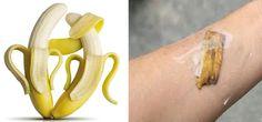 bananeLa banana è un frutto dalle molteplici proprietà e dai tanti effetti benefici: e ciò vale anche per la sua buccia, che può essere adoperata per tanti scopi e per soddisfare una enorme varietà di esigenze. La buccia, per altro, non serve solo a fini cosmetici e non è solo un toccasana per la salute, ma può essere impiegata anche per la vita di tutti i giorni: per esempio, per le pulizie di casa, vista la sua azione antifungina, o in cucina, per purificare l'acqua o per mantenere la…