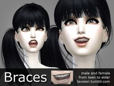 Braces by Lavoieri at TSR via Sims 4 Updates
