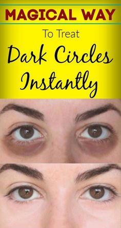 The skin around the eyes is very sensitive and needs more care as compared to other parts of the body. The dark circle is a common problem in men and women. Dark circles can make all face look dull and it also a sign of anti-aging. Dark Circles Treatment, Dark Circles Under Eyes, Dark Under Eye, Dark Rings Under Eyes, Covering Dark Circles, Eye Cream For Dark Circles, Brown Spots On Skin, Skin Spots, Dark Spots