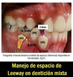 Manejo de espacio de Leeway en dentición mixta | OVI Dental