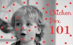 :: Oyster and Pearl :: UK lifestyle / family blog: Chicken Pox 101
