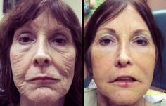 Find out the Before After Photos Anti Bruising Juvederm Microcannula at Look Younger MD. These pictures will help you to find out the best Juvederm services by Dr. Garry Lee in Las Vegas. Read the information here in the link...