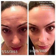 Just gonna tell it like it is Katherine used Redefine with the amp roller for 3 months and her results are AMAZING! ✨✨ The roller is hands down the best product I have ever used. EVER! If you've been considering Botox, facial acupuncture, weird light treatments or masks, lasers, let's at least talk first! You can try for 60 days and if you don't love it, send the empty bottles back for a full refund. Nothing to lose!!