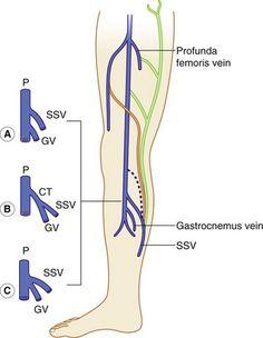 Normal gastrocnemius vein in the lower leg. | popliteal venus ...