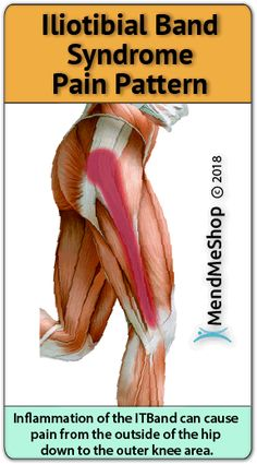 Deep Tissue Therapy for Hip Injuries Iliotibial Band Stretches, Iliotibial Band Syndrome, It Band Stretches, Hip Pain Relief, Muscle Pain Relief, It Band Syndrome Treatment, Bursitis Hip, Hip Injuries, Deep Tissue
