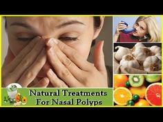 How to Remove Nasal Polyps : How To Treat Nasal Polyps - How to Get Rid ...