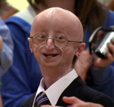 Foxborough's Sam Berns, a high school student with the very rare premature-aging disease progeria, has died, NewsCenter 5 confirmed. You were truly an inspiration to us all. Life Questions, This Or That Questions, Sam Berns, We Remember, In Loving Memory, High School Students, A 17, Medical Conditions, Genetics