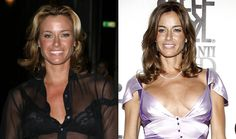 10 Worst Celebrity Plastic Surgery Mishaps - Kelly Bensimon - The Real Housewives of New York City star was attacked by the media in 2008 for unabashedly flaunting her badly misshapen breasts.