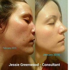 She started with REDEFINE (in February), then REVERSE (March/April-ish), UNBLEMISHED when needed. She used the MACRO Exfoliator tool once a month, and then bought the Amp roller in October and have used it every night with her regimen. Skin Tightening Mask, Skin Firming, Anti Aging Skin Care, Natural Skin Care, Executive Consultant, Rodan And Fields Consultant, Combination Skin, Good Skin, Skin Care Tips