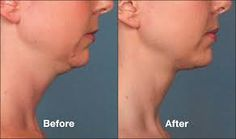 Kybella is ideal for dissolving the excess fat cells of the double chin, remove fat from the neck without surgery and help to tighten the sagging skin for clients at her Fort Lauderdale office. Double Chin Treatment, Chin Liposuction, Double Chin Reduction, Facial Esthetics, Double Chin Removal, Skin Center, Diet Center, Dermal Fillers, Sagging Skin